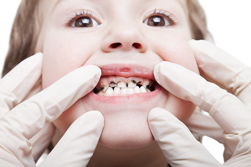 Spot Gum Conditions in Your Child's Teeth
